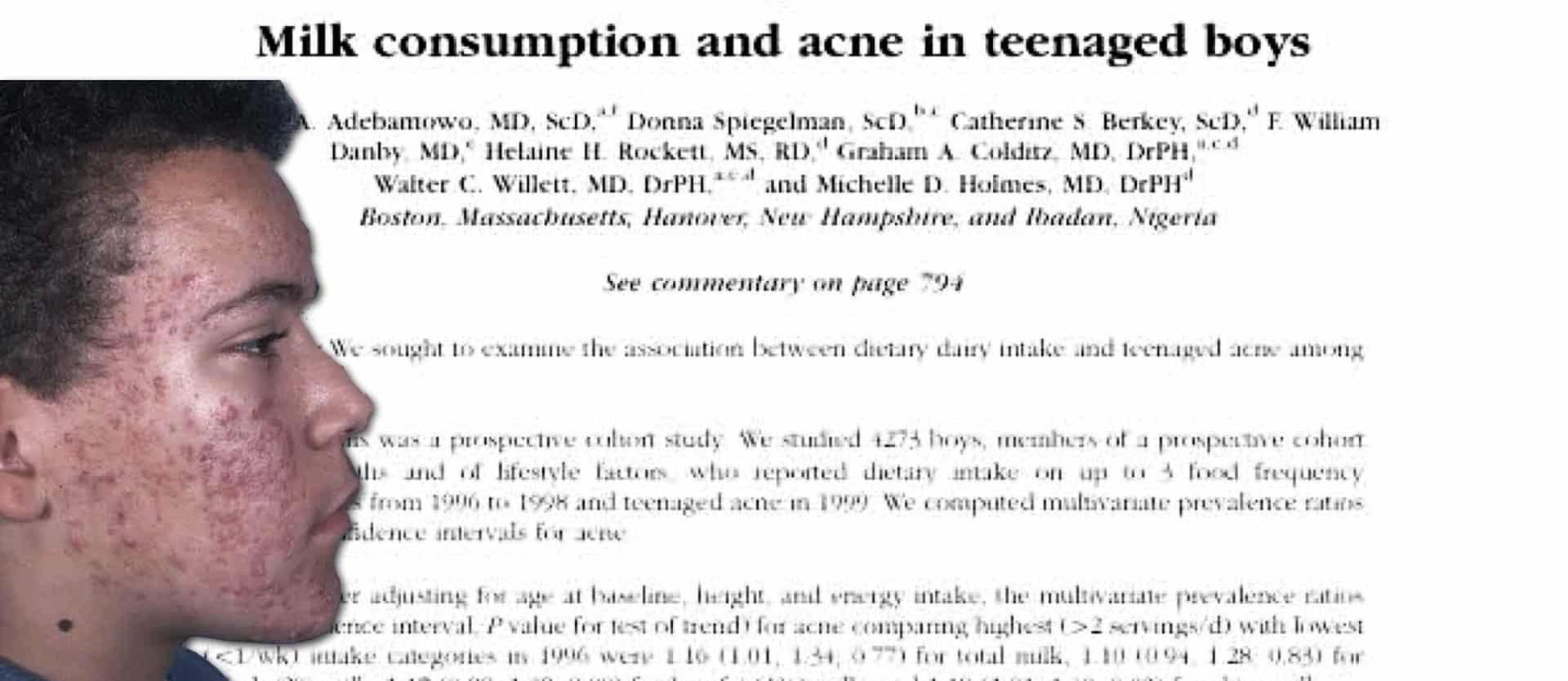 Dairy & Acne