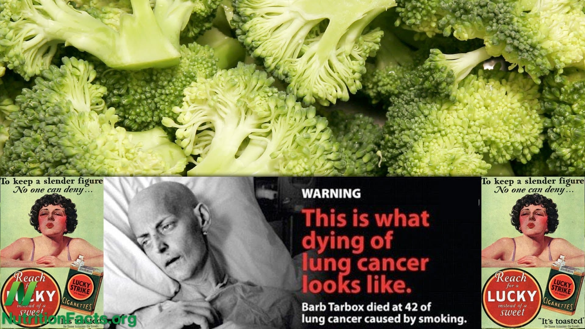 Lung Cancer Metastases and Broccoli