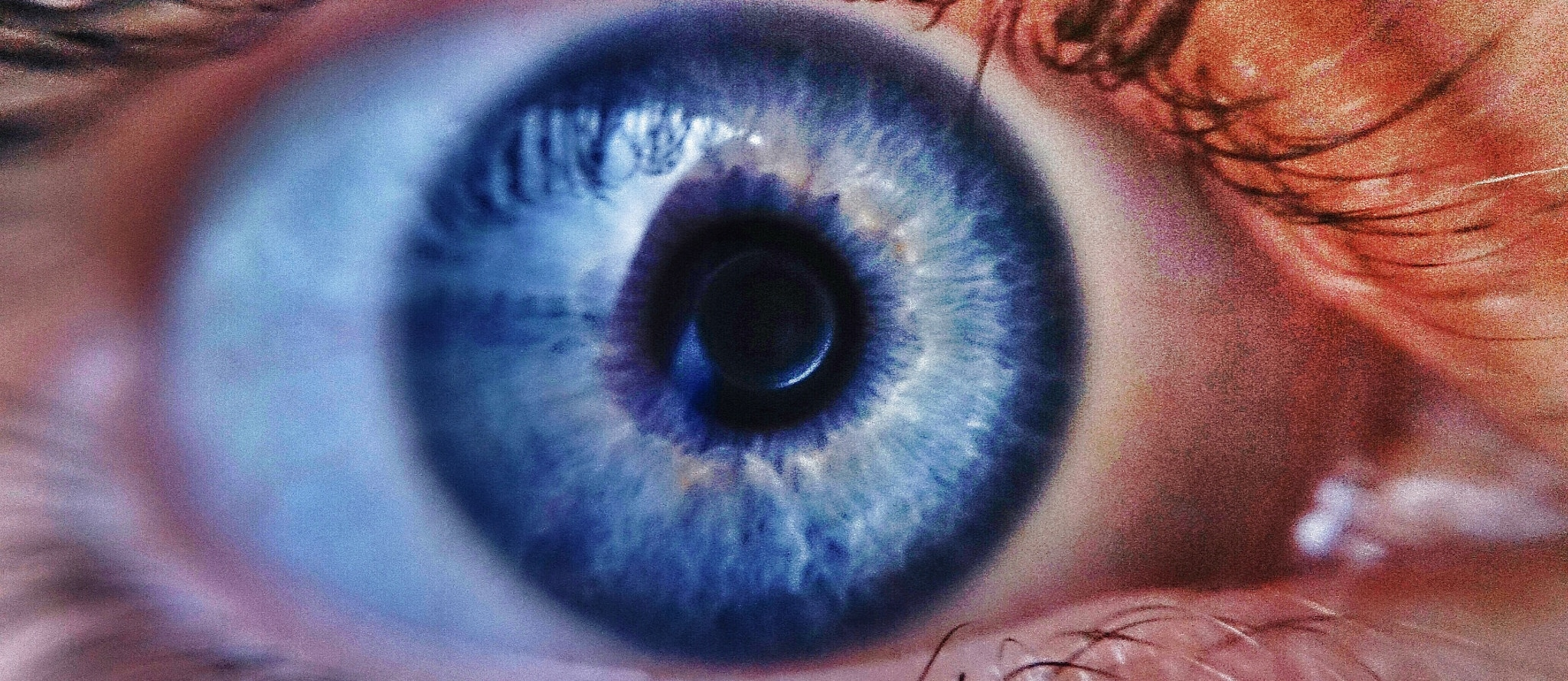 Which Foods Fight Glaucoma?