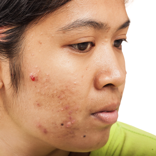Acne Health Topics Nutritionfacts Org