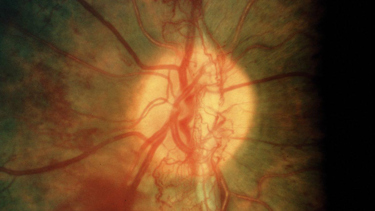 Reversing Diabetic Blindness with Diet