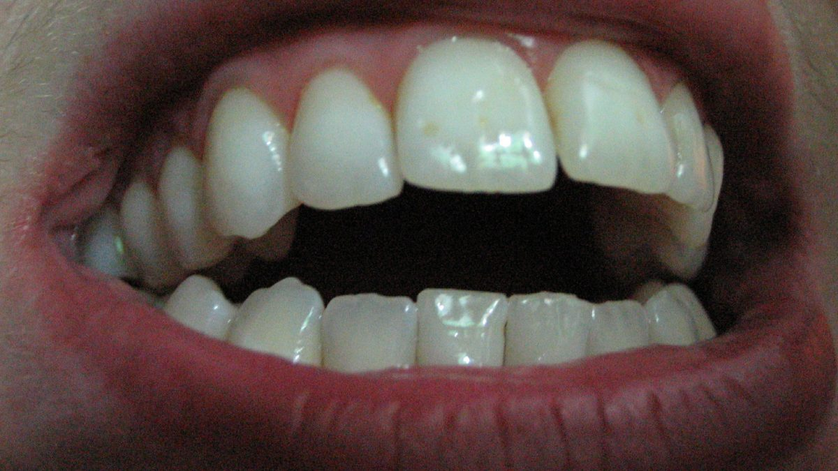 Oil Pulling for Teeth Whitening and Bad Breath Tested