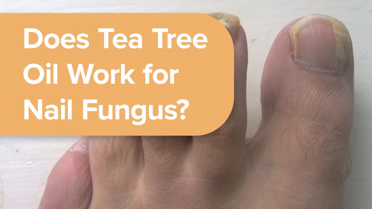Does Tea Tree Oil Work for Nail Fungus? | NutritionFacts.org