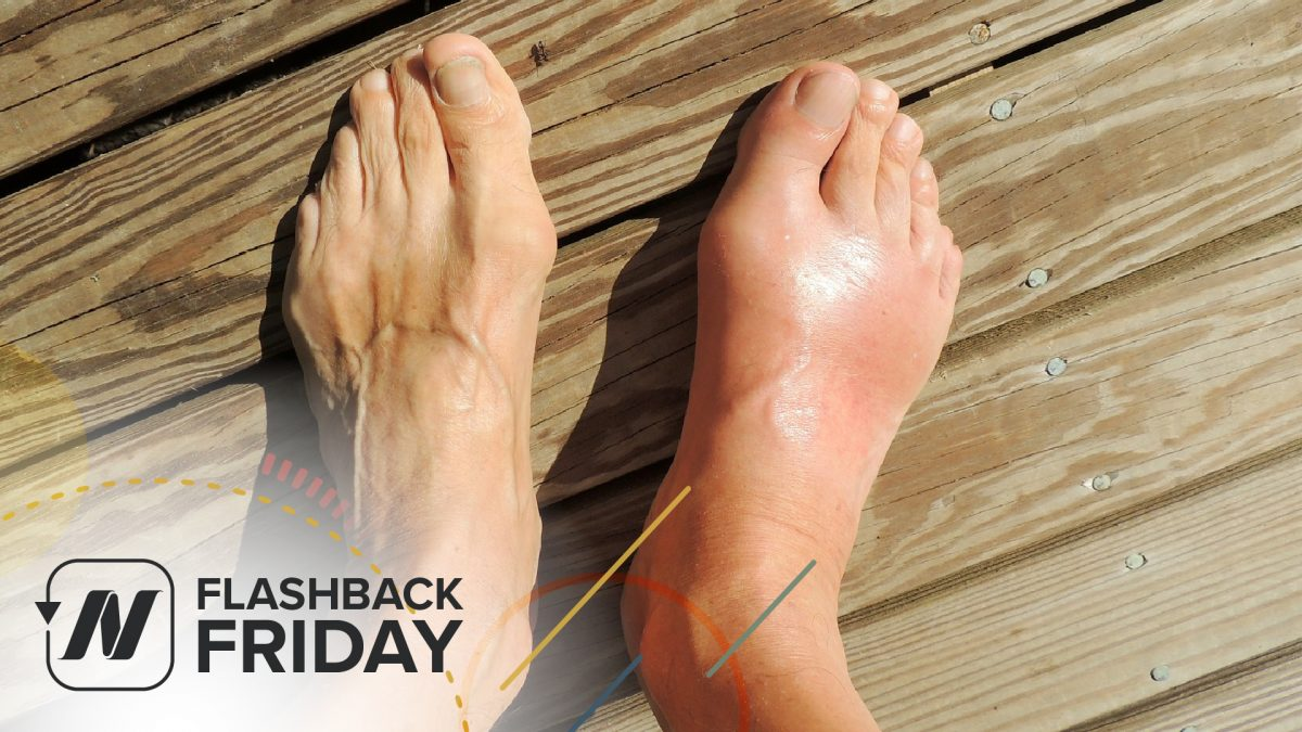 Flashback Friday: Treating Gout with Cherry Juice | NutritionFacts.org