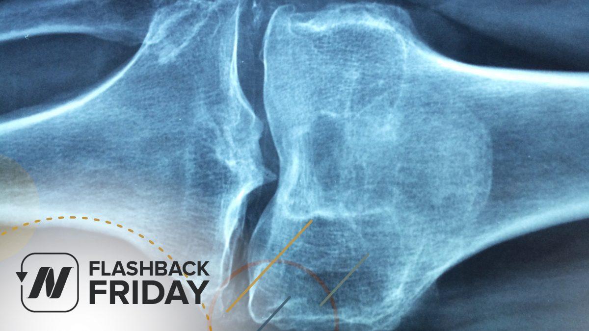 Flashback Friday: Sesame Seeds for Knee Osteoarthritis