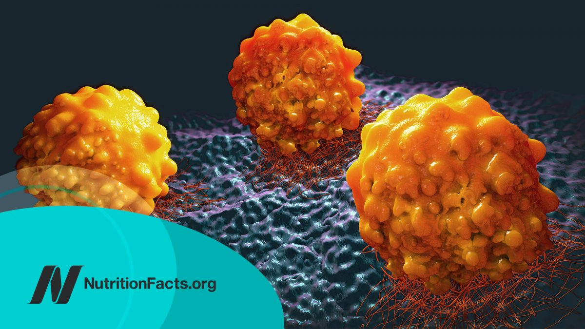 What Causes Cancer to Metastasize?