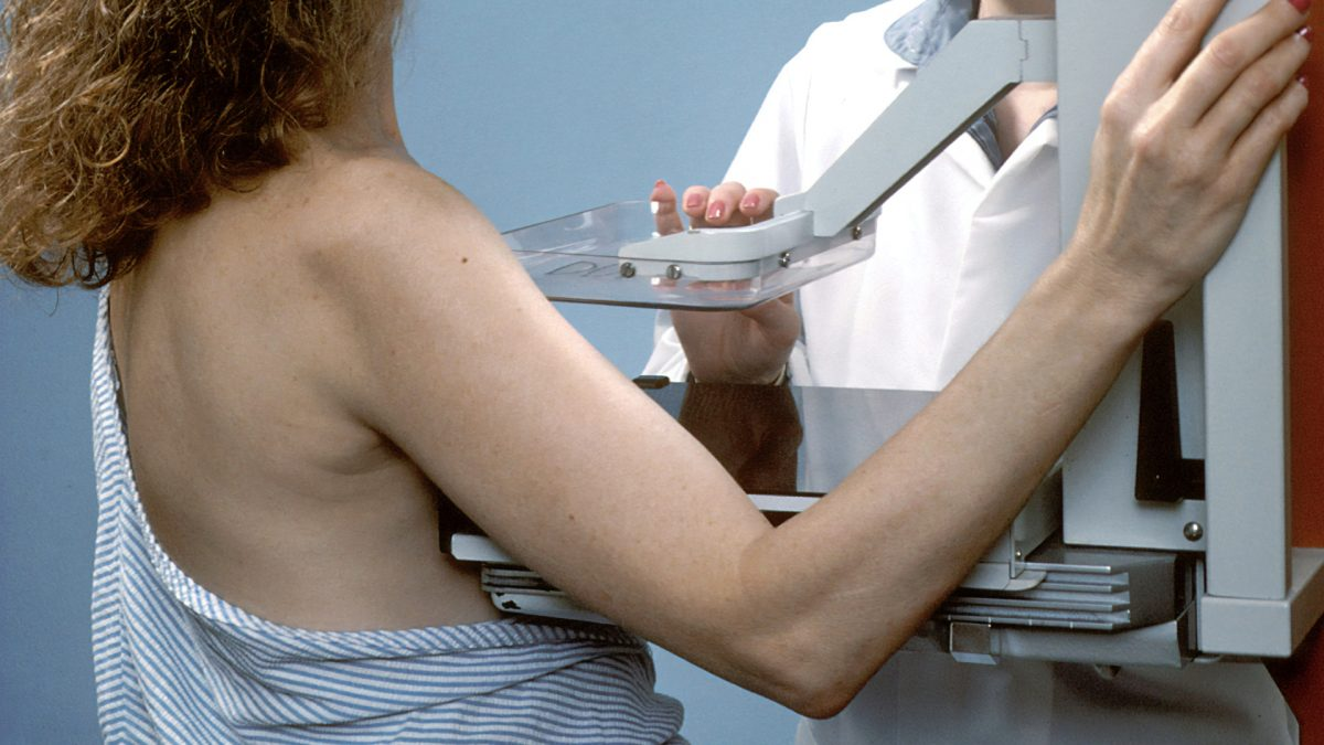 Most Women May Experience at Least One False-Positive Mammogram | NutritionFacts.org
