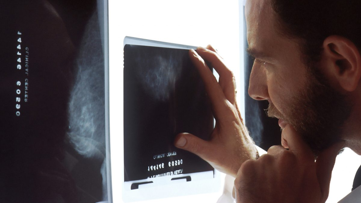 Do Mammograms Have to Be Painful? | NutritionFacts.org